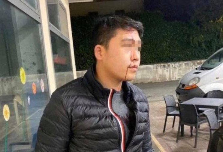 Il cittadino cinese aggredito a Cassola (Facebook)