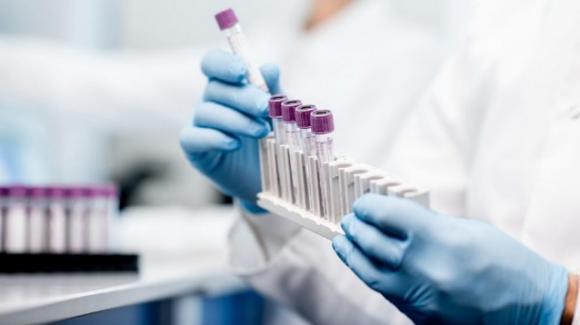 Coronavirus, Rocca Priora: comunicati altri tre casi di positività
